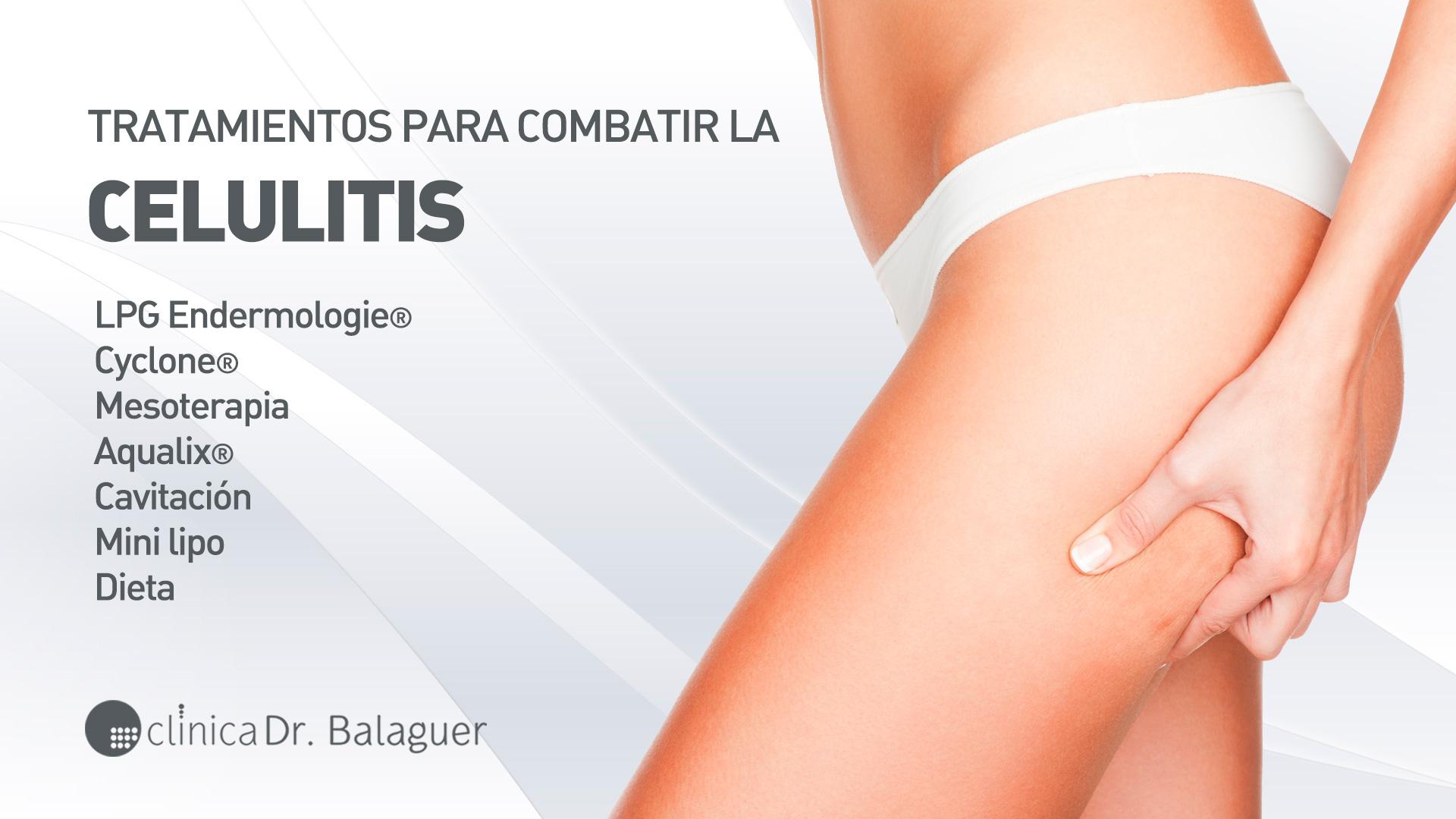 Celulitis y Aparatología