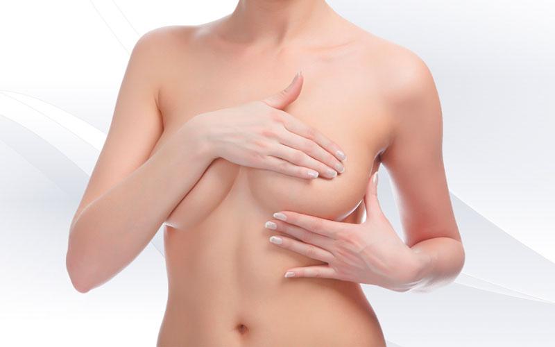 Mastopexia. Elevación mamaria